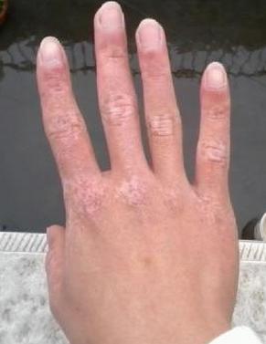 手部白癜风常见的危害有哪些